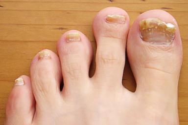 remove-nails